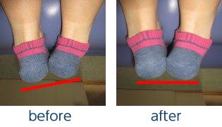 骨盤のゆがみによる足の長さの違い