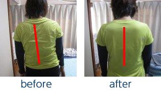 腰痛による上半身の歪み